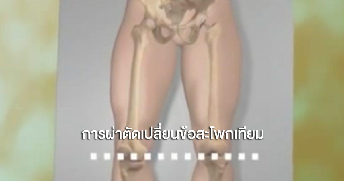 การผ่าตัดเปลี่ยนข้อสะโพกเทียม