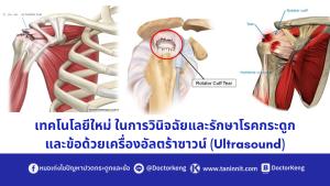 เทคโนโลยีใหม่ ในการวินิจฉัยและรักษาโรคกระดูกและข้อด้วยเครื่องอัลตร้าซาวน์ (Ultrasound)