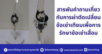 สารพันคำถามเกี่ยวกับการผ่าตัดเปลี่ยนข้อเข่าเทียมเพื่อการรักษาข้อเข่าเสื่อม