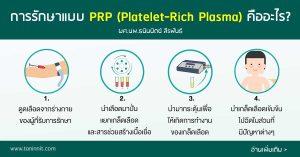 การรักษาแบบ PRP (Platelet-Rich Plasma) คืออะไร?
