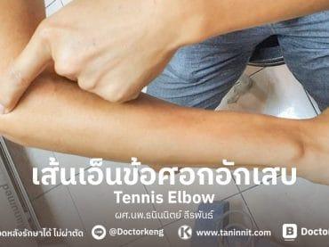 เส้นเอ็นข้อศอกอักเสบ (Tennis Elbow)