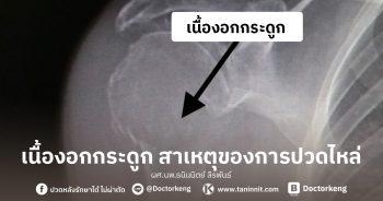 เนื้องอกกระดูก สาเหตุของการปวดไหล่