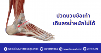 ปวดเท้า ปวดข้อเท้า สาเหตุและการรักษา