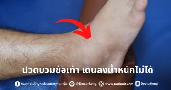 ปวดบวมข้อเท้า เดินลงน้ำหนักไม่ได้