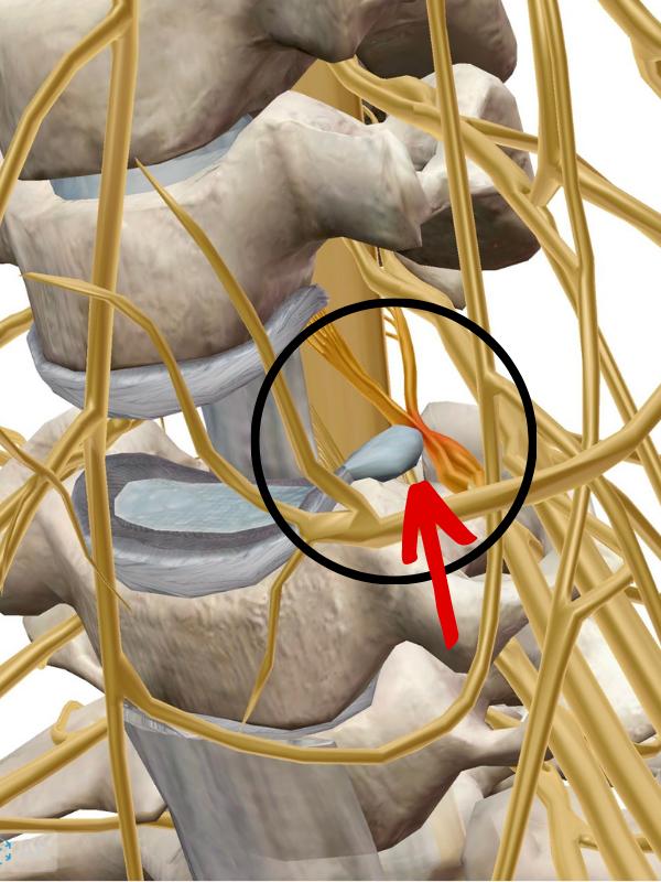 บทความโดย ผศ.นพ.ธนินนิตย์ ลีรพันธ์ หมอเก่ง ไขปัญหาปวดกระดูกและข้อ คลินิครักษา ปวดหลัง ปวดกระดูก กระดูกและข้อ เชียงใหม่