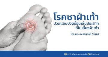 โรคชาาฝ่าเท้า ปวดแสบปวดร้อนเส้นประสาทที่ไปเลี้ยงฝ่าเท้า