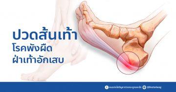 ปวดส้นเท้า โรคพังผืด ฝ่าเท้าอักเสบ